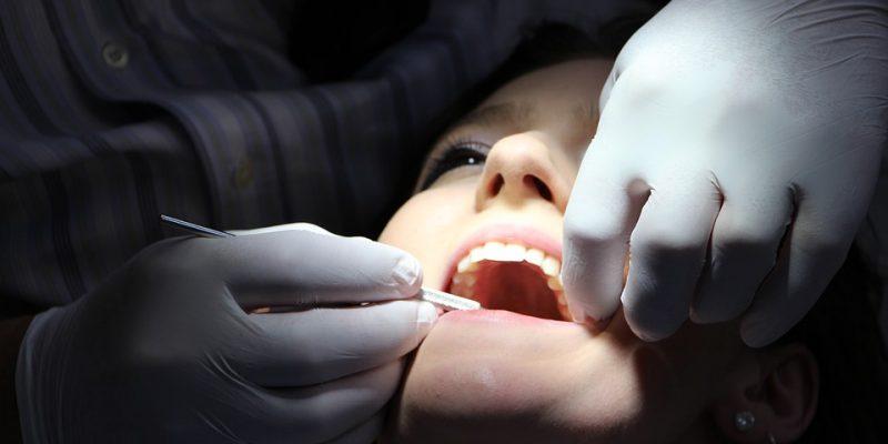 Limpieza dental Clínica Dental Barrutia