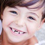 Reimplantes dentales: cuándo y cómo se deben hacer | Clínica Dental Barrutia