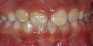 Síndrome hipomineralización | Clínica Dental Barrutia