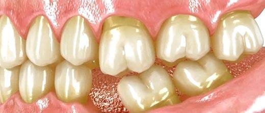 Consecuencias de perder un diente