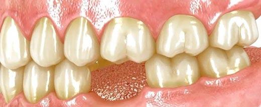 Soluciones a la pérdida de dientes