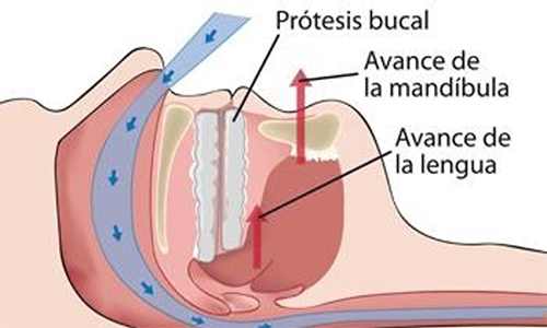protesis bucal