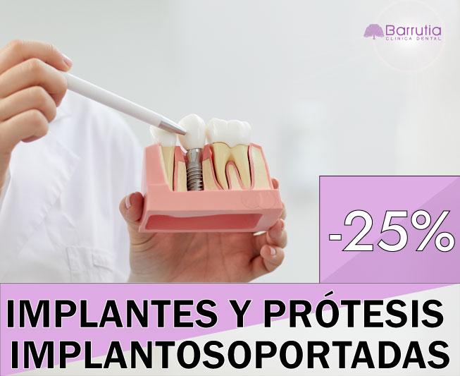 Descuento en implantes y prótesis implantosoportadas